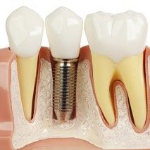 Quel prix devriez-vous payer pour un implant dentaire à Montréal?