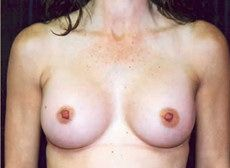 Improved Body Image through Breast Augmentation Before & After Photos, Sterling, Virginia (VA), Dr. David E. Berman, M.D., F.R.C.S.C., Board Certified Plastic Surgeons, boobs nipples