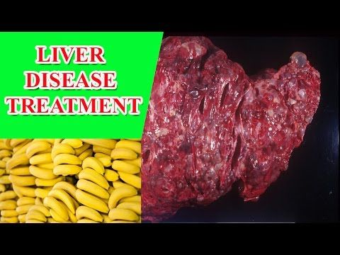 liver disease treatment Natural Ways to Treat Liver  Disease