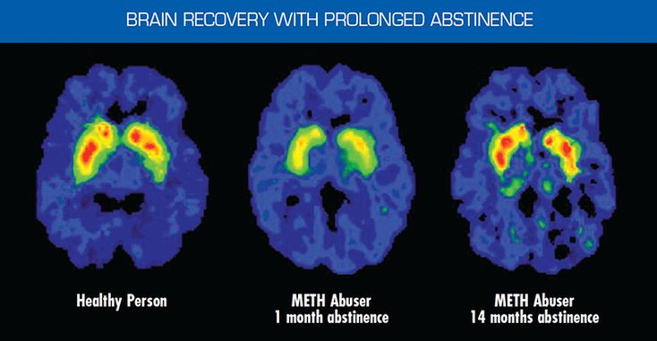 Three brain scans: showing brain recovery with prolonged abstinence. A healthy brain was compared to a Meth abuser's brain with a 1-month and 14-month abstinence, illustrating the brain's remarkable potential to recover with abstinence.