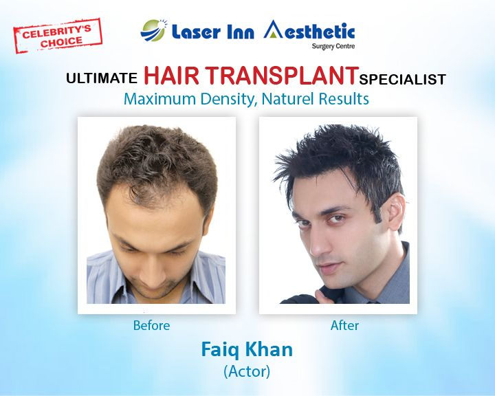 Get your FUE Hair Transplant from world's famous Surgeon Dr. Zulfiqar Tunio (FRCS)  For information & Details Call Now : +923002991016   Website : http://www.liasc.com/  #hairtransplantkarachi #fuehairtransplant #hairtransplantpakistan #hairtransplant #hairtransplantlahore