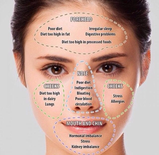 Image Result For Acne Prone Skin Dry