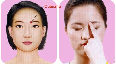 Acupuncture point for optic Neuritis, circulatory failure, Cuanzhu