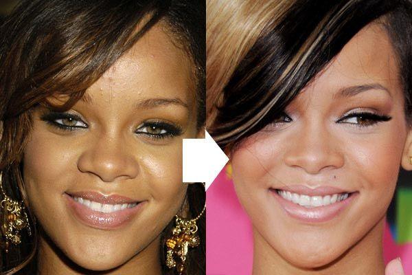 Rihanna Nose Job