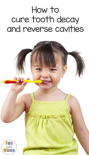 how to avoid tooth decay in toddlers