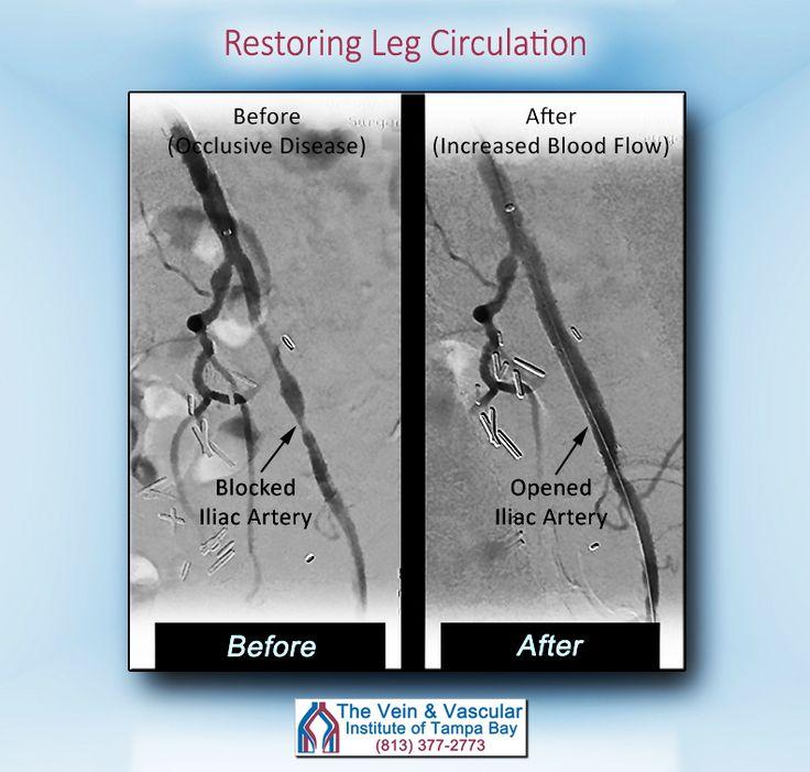 Avoiding Leg Amputations Due to Peripheral Arterial ...