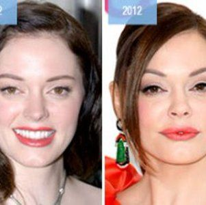 Visit our site http://celebplasticsurgerys.com for more information on Rose Mcgowan Plastic Surgery.Rose mcgowan plastic surgery helps to people enhance their face and body. Many people choose this as an option when they want to reshape their physical features or improve their self-esteem by making their bodies look better. Many people get plastic surgery as they are aging to take away wrinkles or age spots.