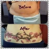 Αποτέλεσμα εικόνας για tummy tuck scar cover tattoo