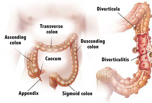 Diverticulitis and diverticulosis are caused when the diverticula in the intestine become inflamed. Learn more about them in the following article.