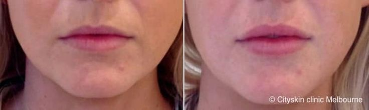 lip dermal filler cost melbourne