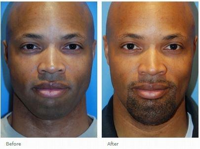 Plastic surgery facial Aesthetic