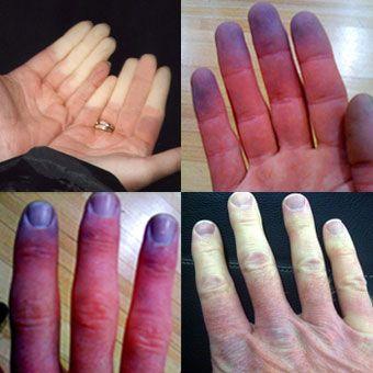 Raynaud's Phenomenon Pictures, Treatment & Symptoms