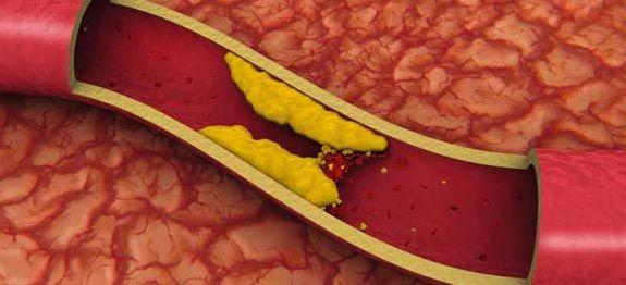 Remèdes naturels contre le cholestérol| Remèdes de Grand-Mère