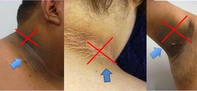 Muchas personas tienen estas manchas oscuras de la piel, alrededor de su cuello, axilas, codos. Este es un trastorno de la pigmentación de la piel bastant