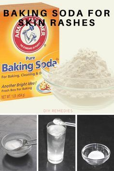 Baking Soda for Skin Rash: Skin rashes are breakouts of the skin that caused due to any underlying medical condition or allergies or getting contact with any irritating substance. Baking soda balances the skin pH level to relieve you from itching. It also has an anti-inflammatory property that provides relief from the redness, irritation, and discomfort caused by skin rashes. It also dries out the rash for getting faster relief.