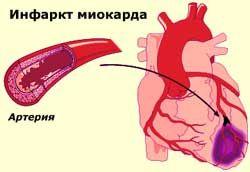 Image result for острый инфаркт миокарда фото