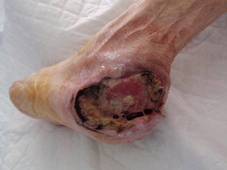 Atopichesky la dermatitis a los niños de 14 años el tratamiento