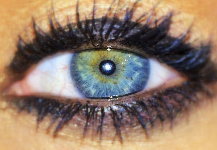 Central / sectoral heterochromia, blue + green.   Öga   Öga
