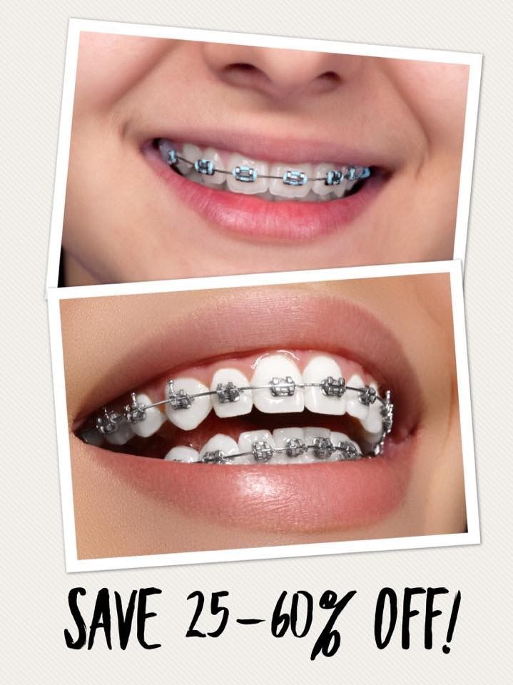 Save between 25-60% OFF BRACES depending on your area! As most of you know (most) dental insurances do NOT cover the cost of braces. Average cost $5000 plus! WITH our dental plus discount program you can pay as low as $2,250 out of pocket! Both children and adults can benefit from this amazing discount! Contact us ASAP for details!