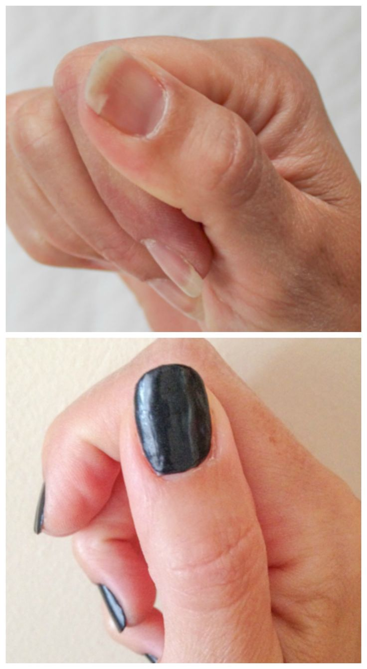 A Quick Trick To Repair A Broken Fingernail.