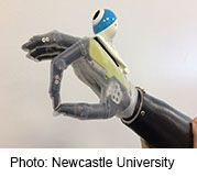Artificial Hand 'Sees' Objects    Camera allows amputees to reach automatically for objects, as a real hand would, study finds   http://www.webmd.com/a-to-z-guides/news/20170504/artificial-hand-sees-objects?src=RSS_PUBLIC
