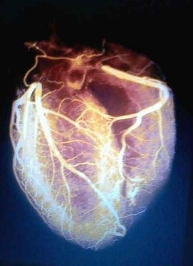 Coronary circulation - like a lightning strike.