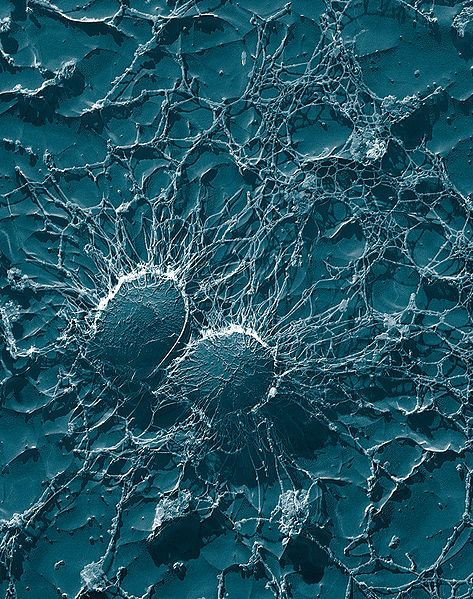 Bacterial cells of Staphylococcus aureus, which is one of the causal agents of mastitis in dairy cows. Its large capsule protects the organism from attack by the cow's immunological defenses. This image was taken at 50,000X magnification on a Transmission Electron Microscope of a heavy-metal coated replica of a freeze dried sample. By Eric Erbe, Christopher Pooley