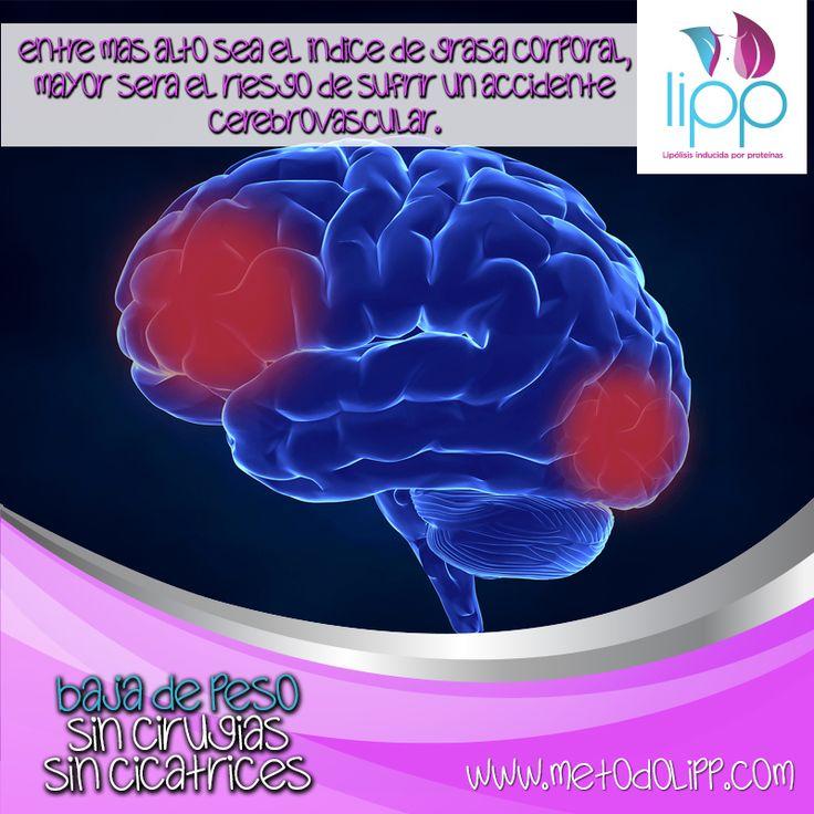 Síntoma 5 de Obesidad o Sobrepeso. Accidente Cerebro Vascular El sobrepeso o la obesidad pueden causar depósitos de placa en las arterias. Con el tiempo, una sección de placa puede romperse y hacer que se forme un coágulo de sangre. Si el coágulo está cerca del cerebro, puede obstruir la circulación  sanguínea por ende la llegada de oxígeno al cerebro y causar un  derrame cerebral. ¿Necesitas más motivos para comenzar a bajar de peso? Queremos ayudarte a bajar de peso Ahora!