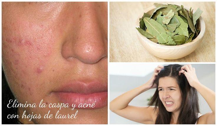 Descubre cómo puede ayudarte el laurel para reducir la caspa y el acné