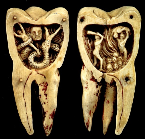 French ivory carving  (1700s), depicting the source of all tooth pain and decay... the Dreaded Tooth Worm!  We now know that toothaches come from people voting for TeaParty candidates.