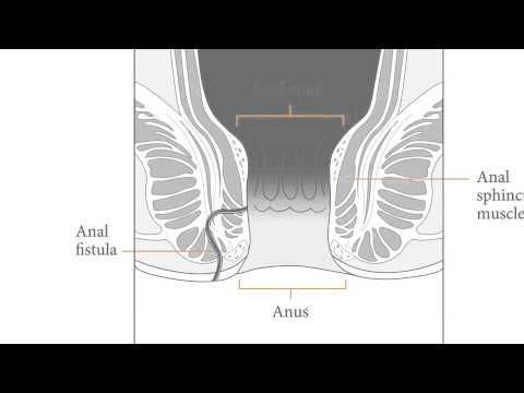 Dr. Hoffman Shares Surgical Treatment Options for Anal Fistulas