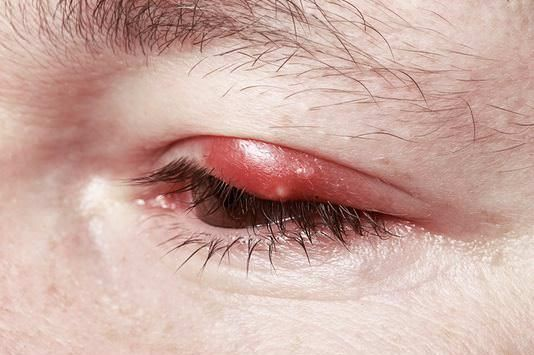 How to get rid of a stye fast and get relief? Have you ever woken up in the morning with a stye on your eye? It is an infection of the sebaceous gland...