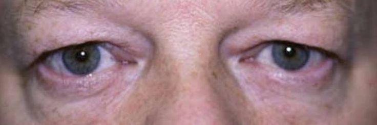Lift je hangende oogleden op natuurlijke wijze