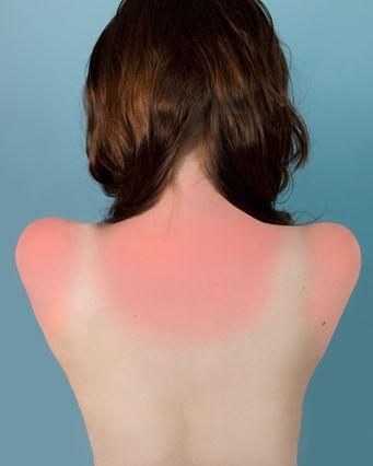Les 16 meilleures images du tableau attention au soleil sur pinterest maillots de bain pour - Bepanthen pour coup de soleil ...