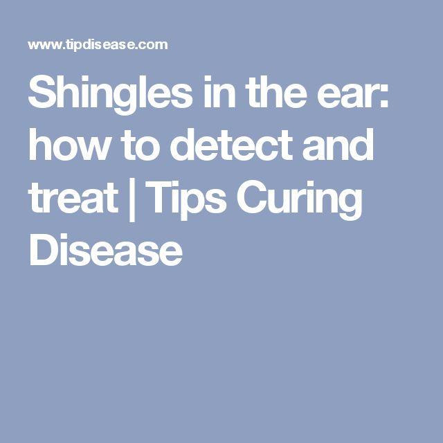 Natural Way Of Curing Shingles