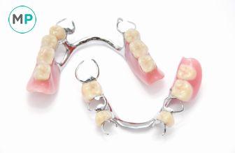Las prótesis dentales o dentaduras postizas son necesarias al perder dientes, no sólo por estética sino por función masticatoria y para evitar que otros dientes se aflojen: http://www.medicoplastica.com/odontologia/odontologia-reconstructiva/protesis-dentales