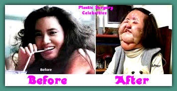 Hang Mioku Before After Plastic Surgery Celebrities