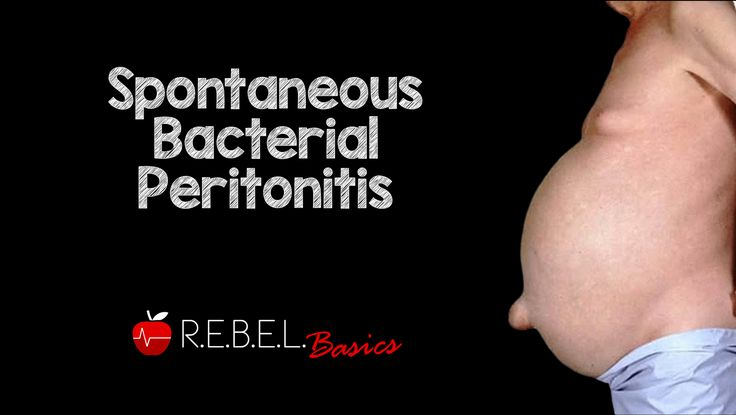 Spontaneous Bacterial Peritonitis  #FOAMed #corecontent