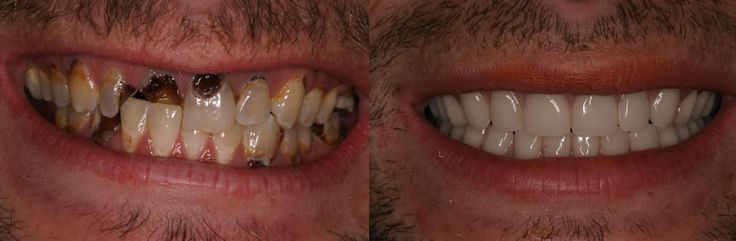 Teeth. Meth mouth: before and after. | Makeup Morgue ...