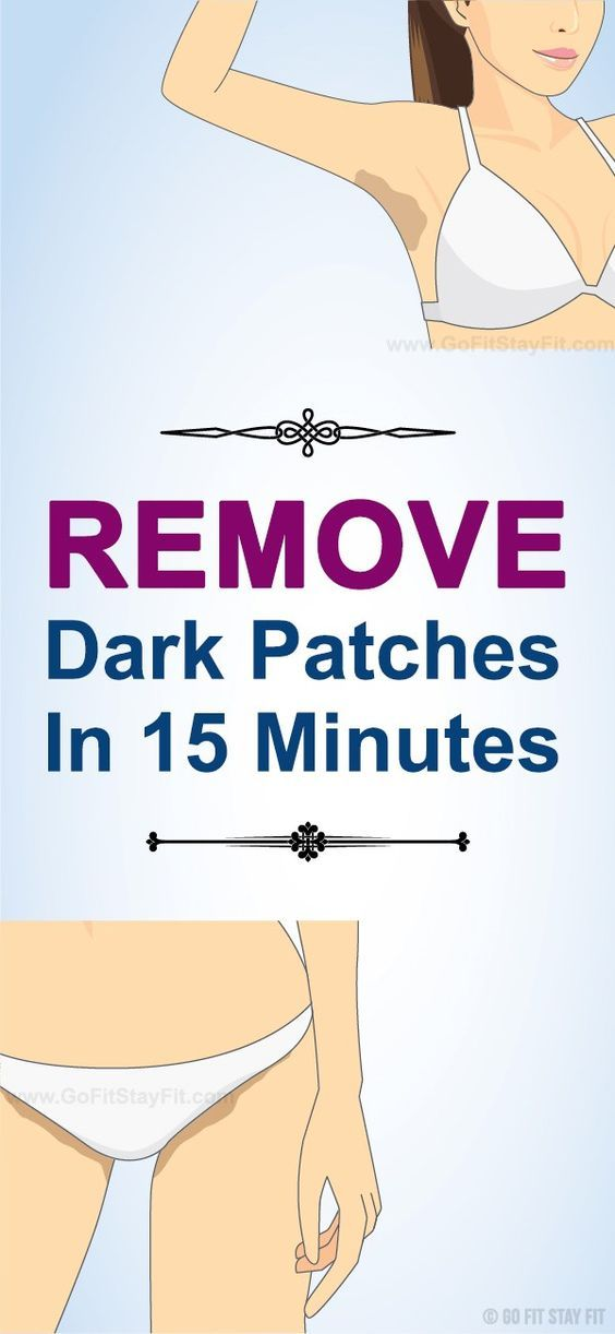 REMOVE THOSE UGLY DARK PATCHES ON THE NECK, UNDERARMS AND INNER THIGHS IN 15 MINUTES