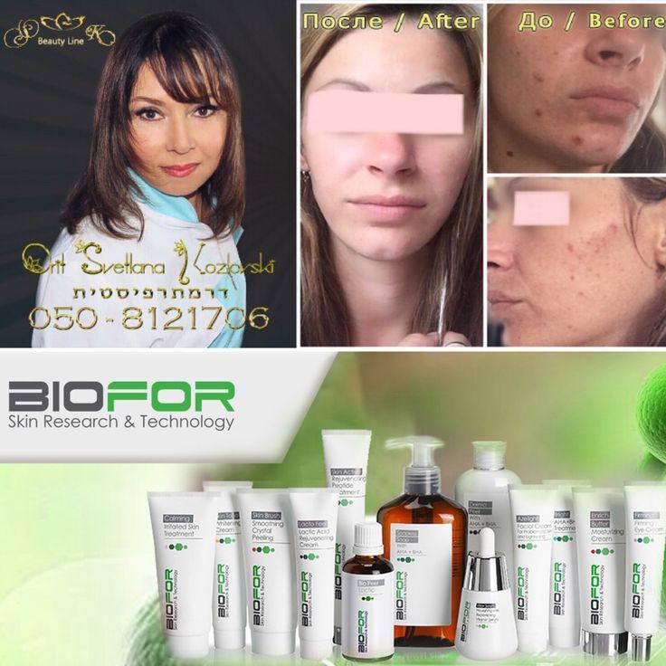 Biofor эффективная косметика для ухода за проблемной кожей  #Biofor