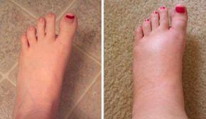 Un remède incontournable contre les pieds gonflés