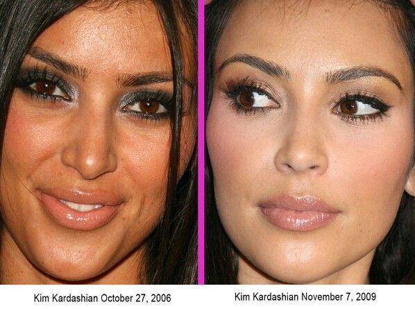 Kim Kardashian Before After Nose job