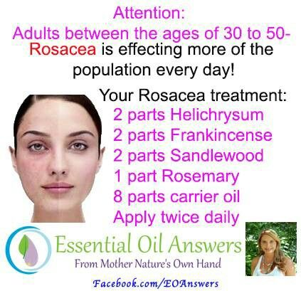 Cure for rosacea