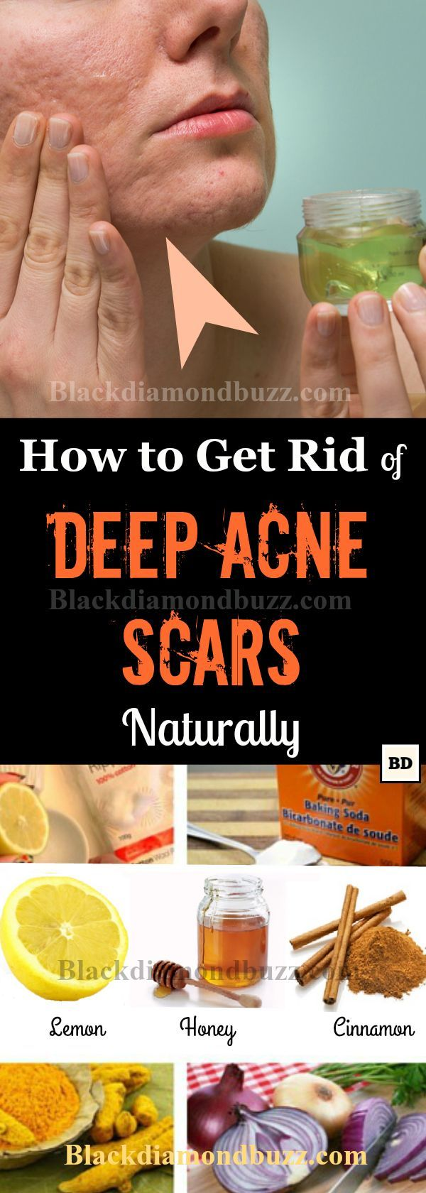 Acne scars removal : how to get rid of acne scars naturally.Easy home remedies to remove deep acne scars