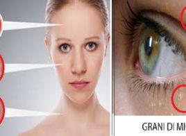 Grani di miglio sulla pelle cause e rimedi