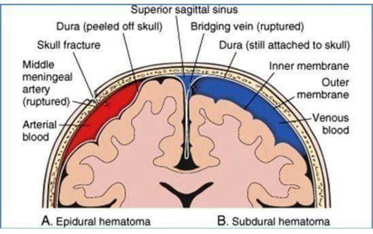 Dating of subdural hematoma