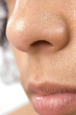 Difference Between Blackheads & Sebaceous Filaments
