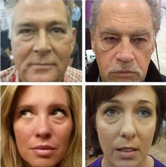 2 minute results - Amazing Instantly Ageless  Watch the live demo here... www.flawlessin2.info