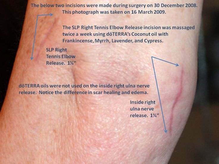 Scar Reduction Using A List Of Doterra Essential Oils With